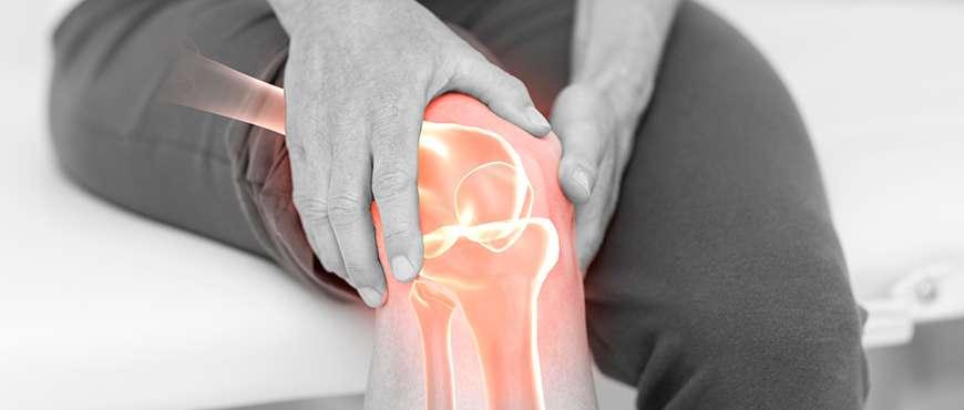 Artrite del ginocchio