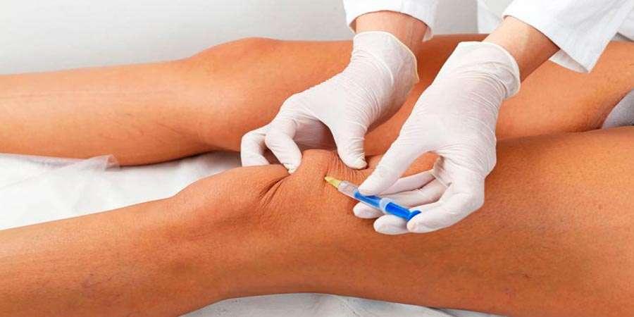 Come curare l'artrite del ginocchio